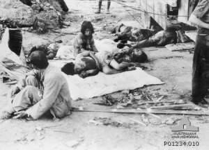 Hiroshima injuries